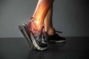 Arthro Care opinie, forum, komentarze