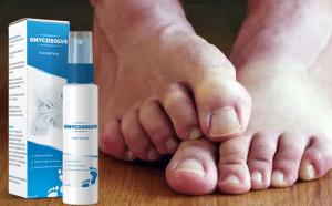 Onycosolve spray, składniki, jak używać, jak to działa, skutki uboczne